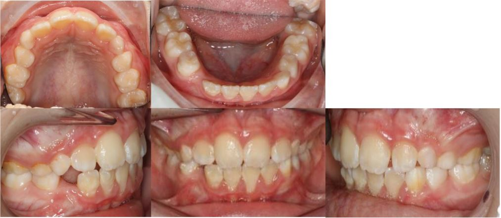 POST TREATMENT INTRAORAL Impacted LR3 mixed dentition