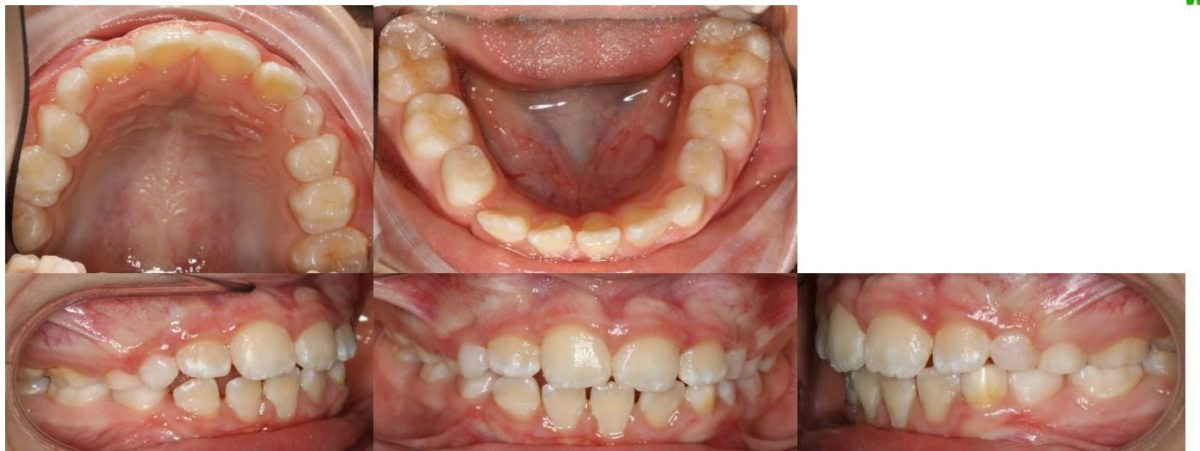 pretx intraoral montage impacted LR3 mixed dentition montage